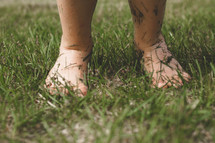 A toddler barefoot in the grass.