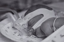 Premature baby on breathing machine