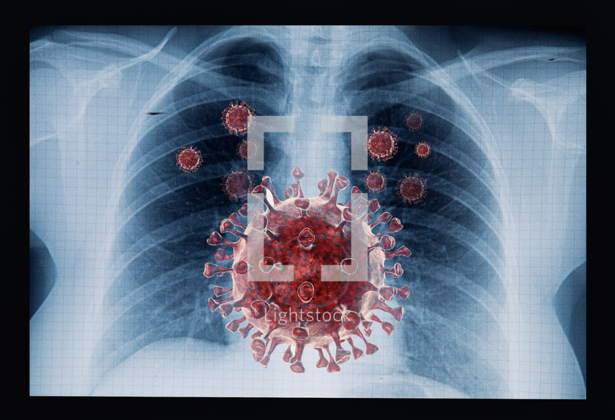 X-ray with covid virus
