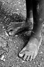 A child's dirty bare feet