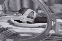 Premature infant on breathing machine