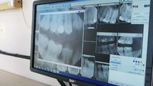 x-rays of teeth on a computer screen