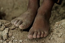 A child's feet - worn and dirty
