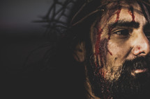 blood on the face of Christ
