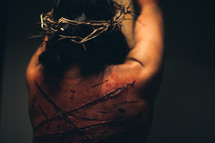 The suffering of Christ -- a beaten Jesus in His crown of thorns tied to the cross.